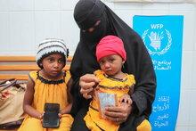 Jemen immer schlimmer: Mangelernährung kleiner Kinder steigt